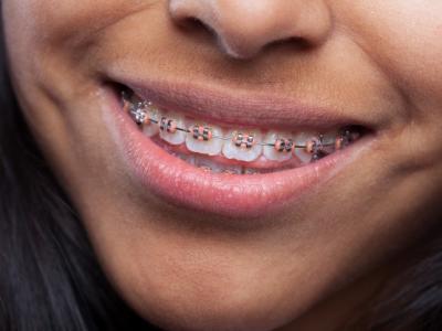 Imagem mostra mulher que sorri com aparelho de dentes